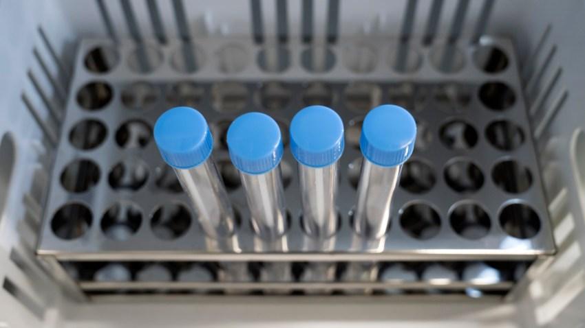 File photo of coronavirus tests.