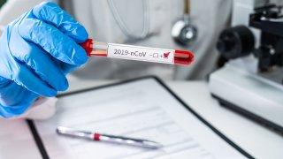 prueba de sangre positivo coronavirus
